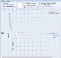 EMG/ENG - Neurologische Behandlungsmethode